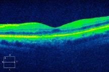 retinal arctitecture